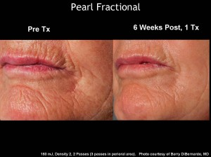 Pearl Fractional2