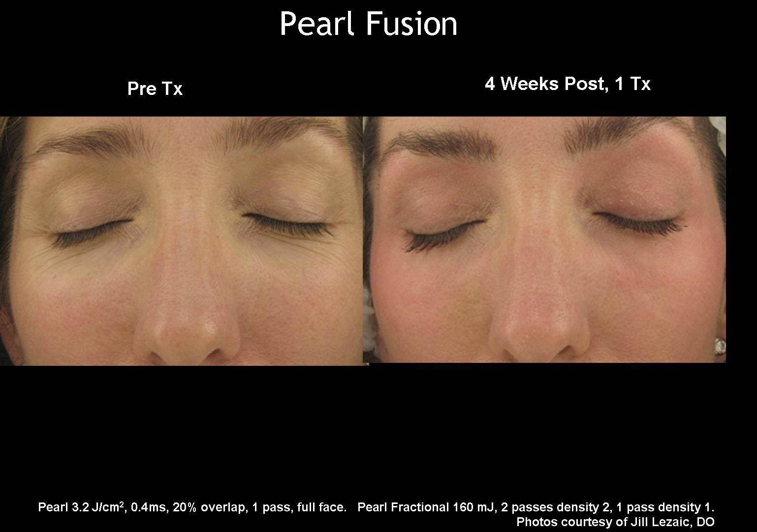 Pearl Temecula Weight Loss M D Diet Of Temecula
